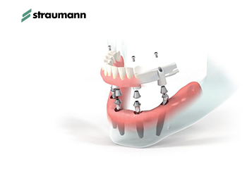 Implant systems dedicated for patients with complete edentulism: